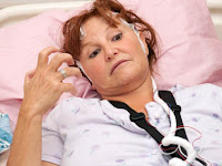 Agar Penyakit Stroke Cepat Sembuh