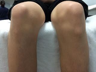 Osgood Schlatter en niños(dolor rodilla) / Fisioterapia en casa