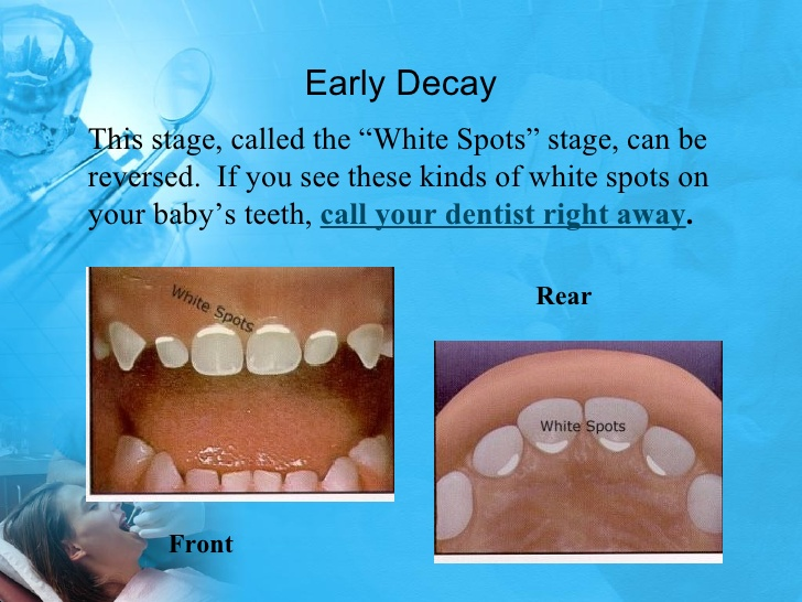 Week 8 Cavity Healing - Dental Caries Tooth Decay In Children