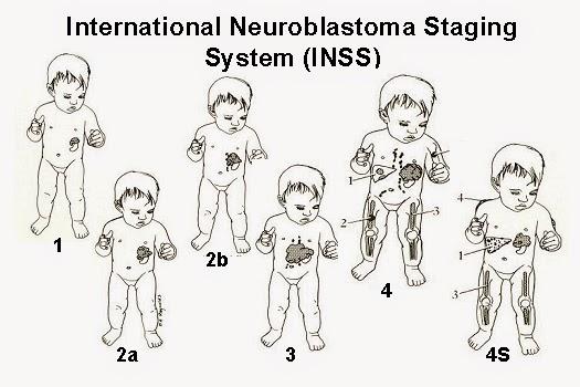 Apa Itu Penyakit Neuroblastoma Pada Anak ?