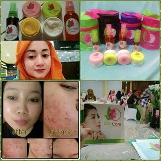 Testimoni 4 Raj Skin Care