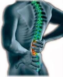 Cara Terbaik Mengatasi Pengapuran Tulang Pinggang