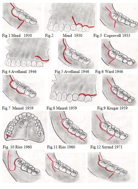 flap design for impacted third molar pdf