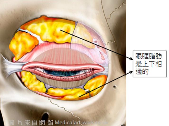 眼袋手術-割眼袋
