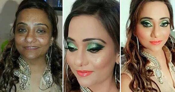 facial cosmetic surgery toronto