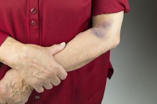 Ways to treat hematoma at home