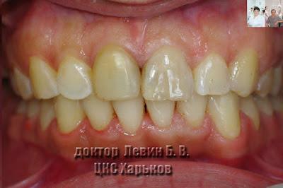 Фото прикуса с фронтального ракурса после лечения