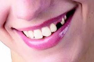 Diş Eksikliğinin Zararları Nelerdir ?