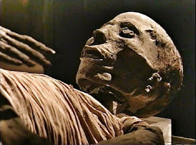 Prosthetic pin discovered in ancient Egyptian mummy