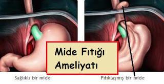 mide fıtığı ameliyatı