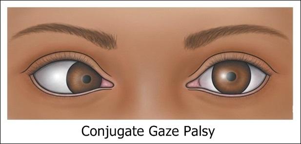 Obat Conjugate Gaze Palsy, Cara Mengatasi Secara Alami Tanpa Efek Samping