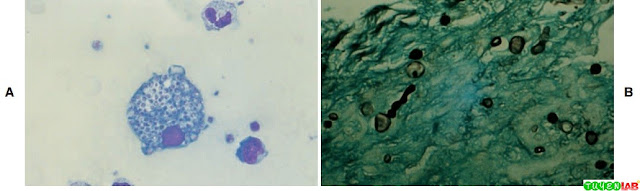 A, Bone marrow aspirate stained with Giemsa showing the yeast cells of Histoplasma capsulatum var. capsulatum inside the monocytes (1200×). B, Tissue phase of H. capsulatum var. capsulatum. (Gomori methylene stain, 1200×).