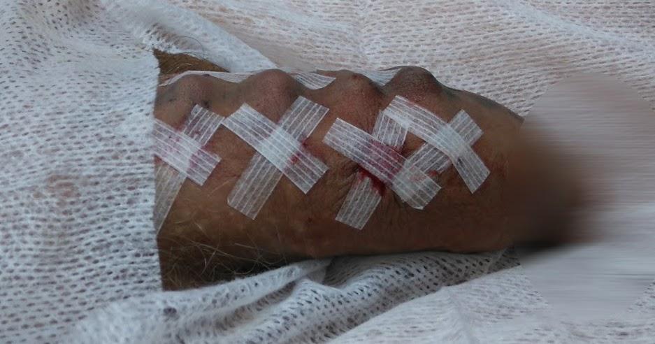 Penis bead implants