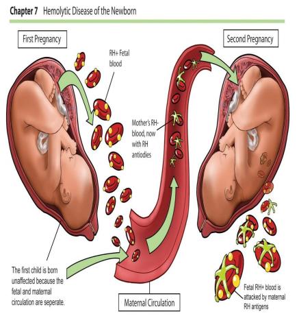 Kan Uyuşmazlığı(Eritroblastozis Fetalis) Nedir? Neden Olur?