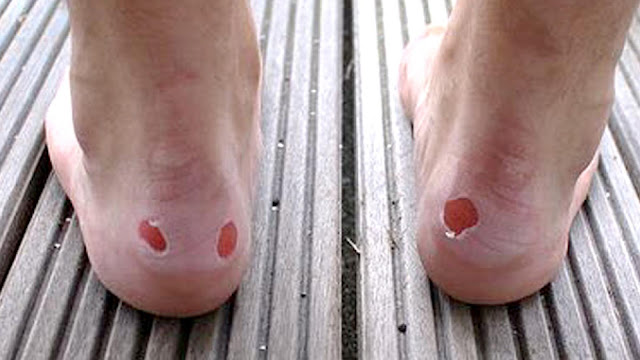 Lindungi Kaki Anda dari Lecet Penggunaan Sepatu Menggunakan Ini!
