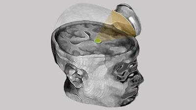novedoso procedimiento de ultrasonido