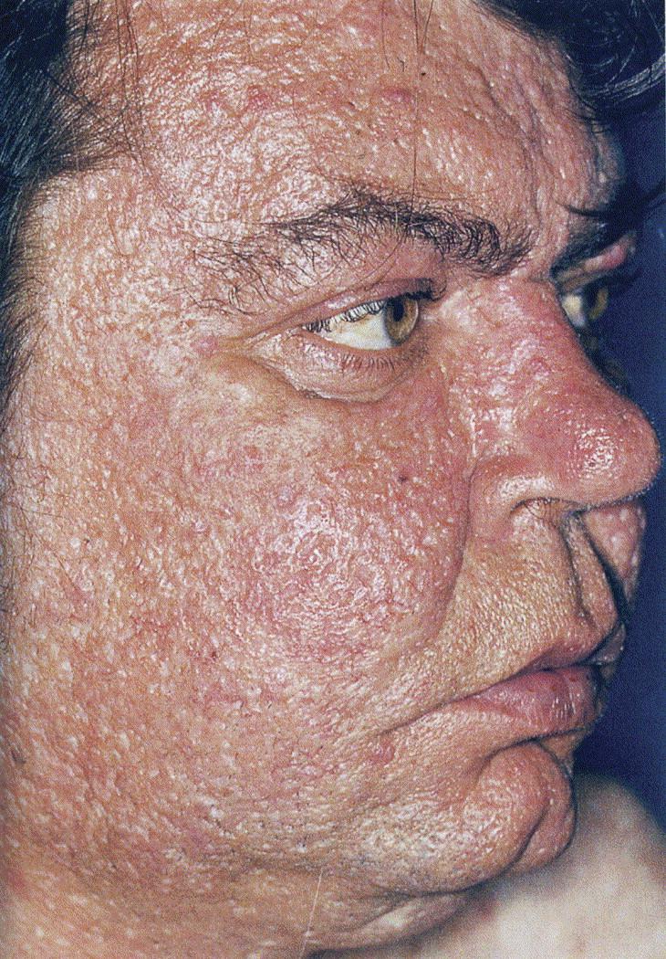 Discoloration Around Eyes: Kronstantinople: Lupus -- The Blushing Terrorist -- Bulges
