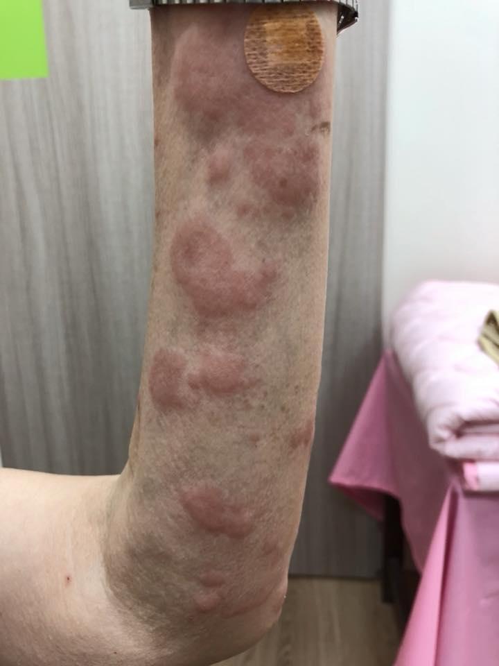 全身 蕁 麻疹 原因