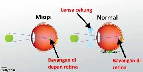contoh penerapan sifat bayangan lensa cekung pada cacat mata miopi (rabun jauh)