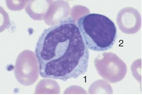 Monocyte (1) with nucleus resembling that of a band neutrophil,  but its cytoplasm stains typically gray–blue. Lymphocyte (2).