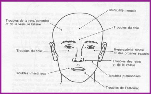 Le blanchiment de la personne des taches de rousseur et les taches de pigment