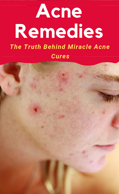 The Truth Behind Miracle Acne Cures