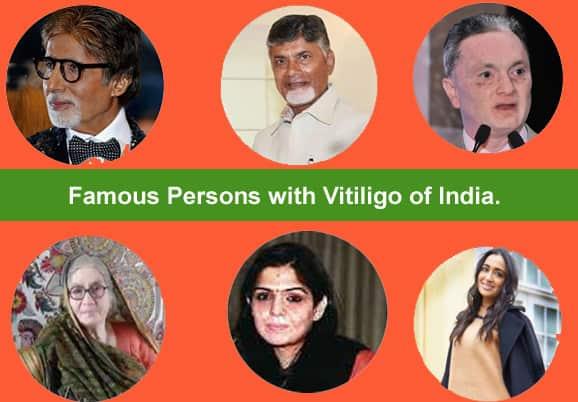 10 Famous People with Leucoderma/Vitiligo of India