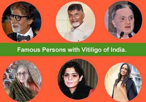 10 Famous People with Leucoderma / Vitiligo of India