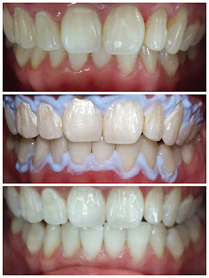 Luxe Smiles Dental Center Southwoods