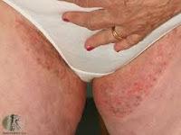 Bagaimana Cara Sembuhkan Gatal-Gatal Pada Selangkangan- Banyak penyebab timbulnya rasa gatal diselangkangan atau lipatan bagian dalam paha. Salah satu faktor utama yang menjadi penyebab gatal pada selangkangan yaitu dari dalam diri kita sendiri. Rasa gatal pada selangkangan dapat menyerang karena kondisi fisik atau bagian tubuh yang kurang terjaga dari kebersihan. Adanya pertumbuhan jamur pada kulit. Terlebih lagi apabila selangkangan jarang sekali terkena oleh sinar matahari secara langsung sehingga pada bagian selangkangan dan sekitarnya menjadi lembab yang dapat menimbulkan jamur sangat mudah tumbuh pada kulit tersebut. Apabila jamur mudah untuk berkembang biak dengan cepat maka anda akan sangat merasa tersiksa oleh rasa gatal yang timbul dari penyakit ini, namun untuk anda yang mengnalaminya tidak umsah khewatir karena kami dari de nature menyediakan obat herbal yang ampuh untuk atasi gatal-gatal pada selangkangan, obat sangat aman tidak berefeksamping dan tidak menimbulkan ketergantungan pada obat, silakan anda konsultasikan penyakit gatal-gatal anda dan pesankan obat bersama Customer Service De Nature di 0823-1338-8530 /0877-3667-6665 atau BBM d092d2d4.