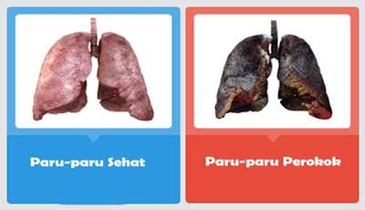 Perbandingan kondisi paru-paru perokok dan bukan perokok