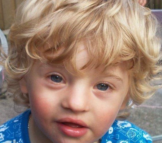 lifes little surprises  mosaic down syndrome awareness