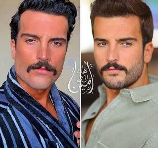 شاهد كيف أصبح شكل الممثل السعودي مهند الحمدي بعد التجميل. صور صادمة