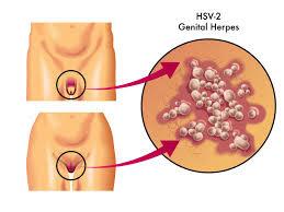 Gambar Harga Obat Herpes Kelamin Paling Ampuh 3 Hari Sembuh