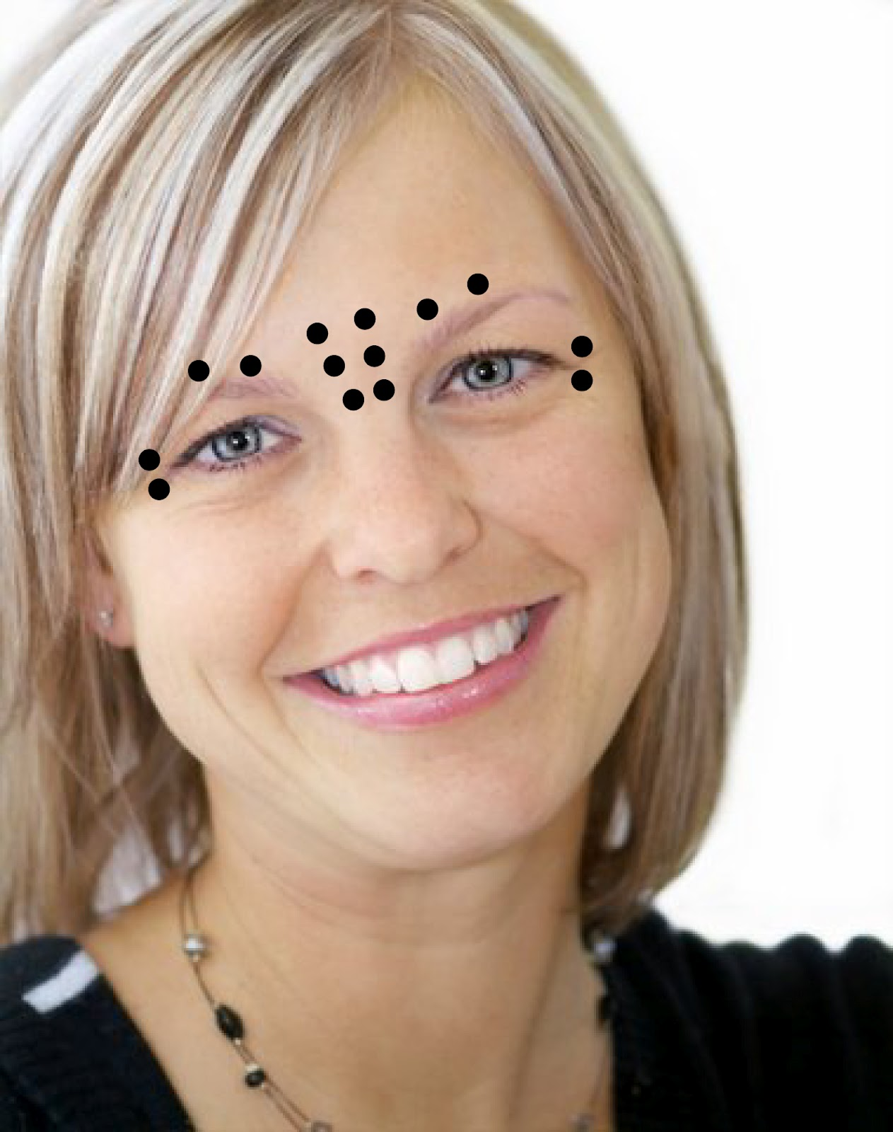 The Official Rucker Md Blog Avoiding Botox Blunders