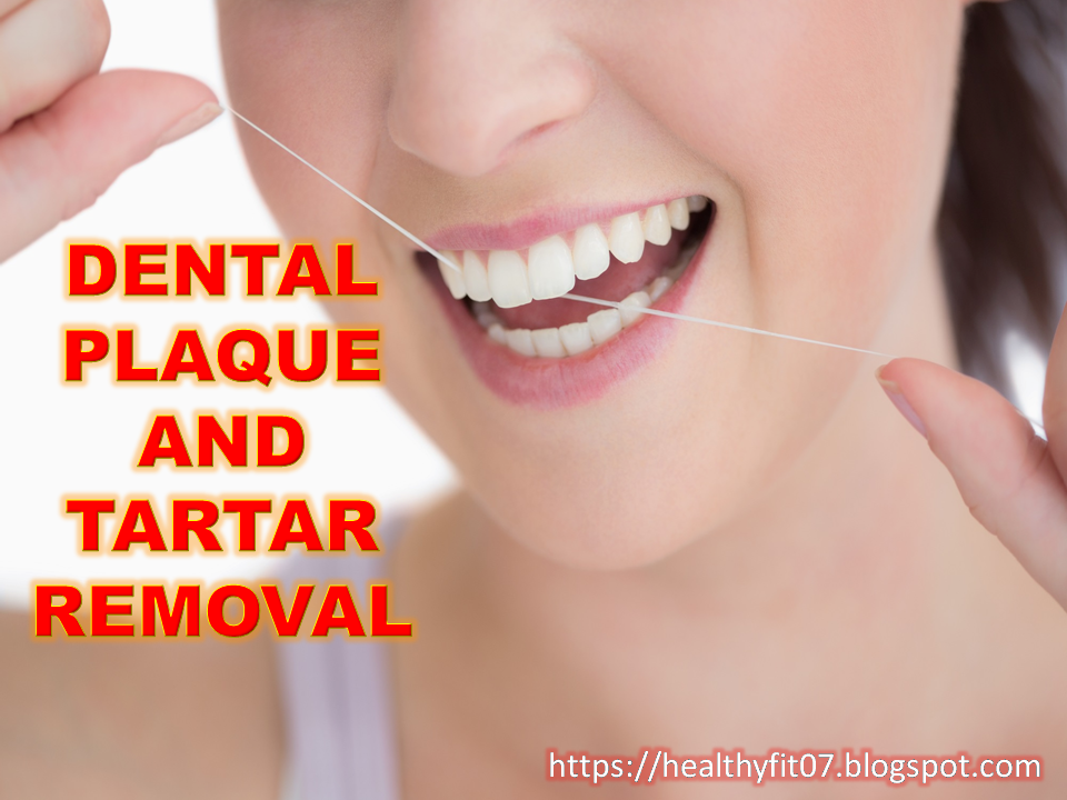 Natural Remedies For Dental Cavities