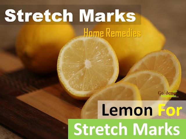 lemon for stretch marks, lemon juice for stretch marks, how to lighten stretch marks fast with lemon, how to get rid of stretch marks, home remedies for stretch marks, how to remove stretch marks, stretch marks treatment,