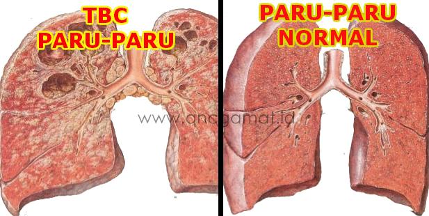 Obat TBC Paling Ampuh Di Apotik