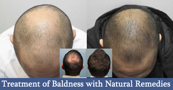 Treatment of Baldness with Natural Remedies for Men and Women