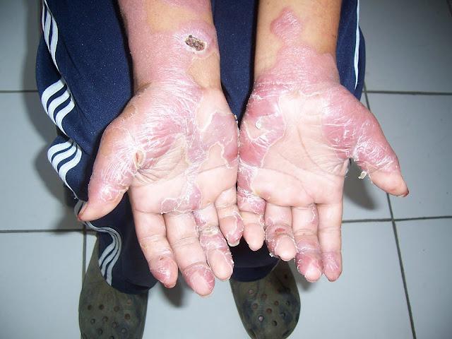 Penyakit Kusta