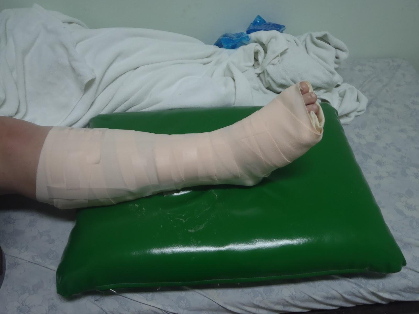 Broken leg in Thailand hospital