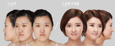 wonjin beauty medical group plastic surgery case undercover 2