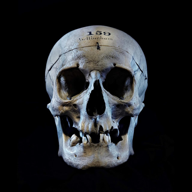 Revealing the face of an infamous 19th century British assassin from a skull