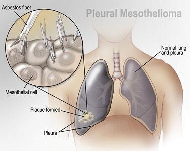 Texas Mesothelioma Law Firm