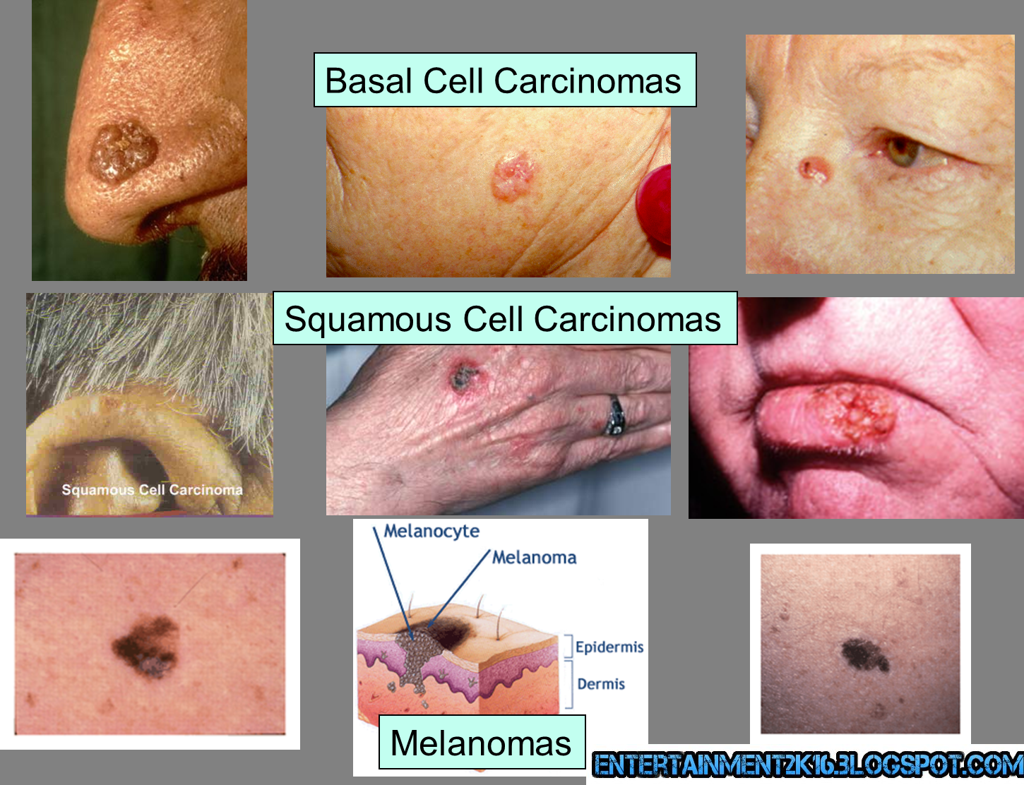 different types of skin cancer ~ hd wallpapers & articles database !, Skeleton