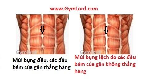 Khắc phục cơ bụng bị lệch