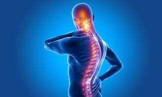 Ankilozan spondilit ve koksartroz rahatsızlığı bulunan engellinin taşıt alımında ÖTV istisnası