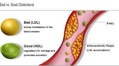 Gejala Kolesterol Pada Tubuh