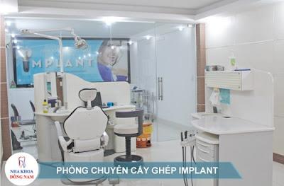 tư vấn cấy ghép răng implant -7