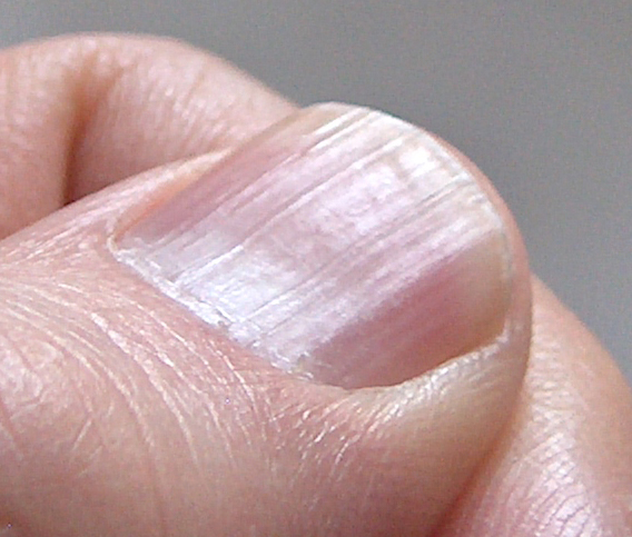 Best Nail Treatment For Ridges: Teen Tips: Nail Care
